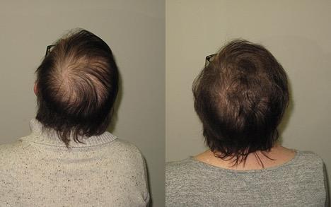 Breast Cancer Patients: Management of Hair Loss in the Face of Endocrine Therapy