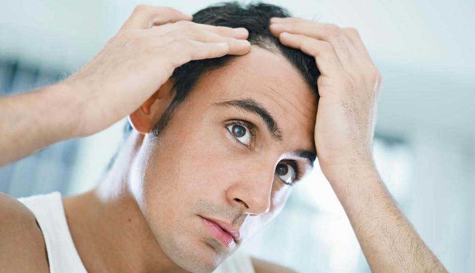 Classifications of Hair Loss Disorders