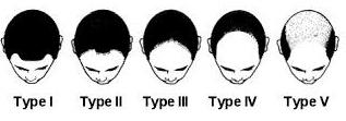semitic hair loss chart